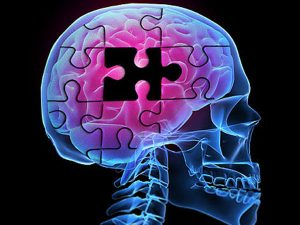 Alzheimers-skull-brain-puzzle-600