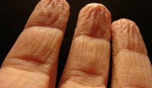 pruned fingers