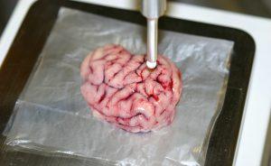 smart-scalpel