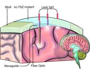 160713 Window-to-the-brain
